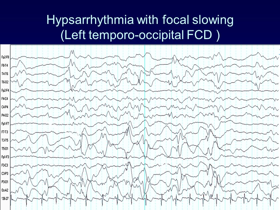 Hypsarrhythmia with focal slowing (Left temporo-occipital FCD )