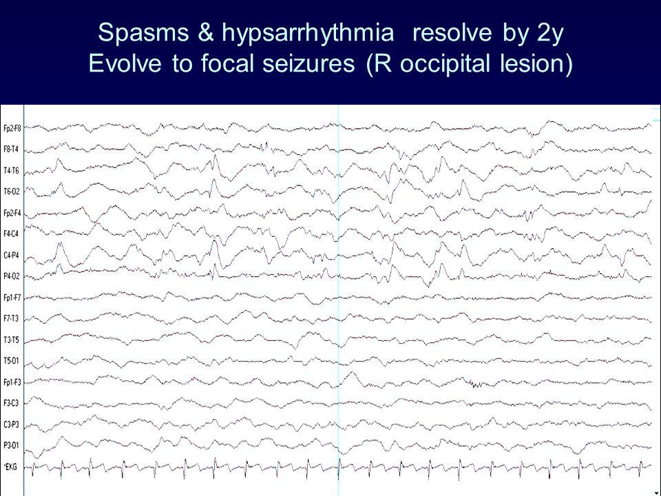 Spasms & hypsarrhythmia resolve by 2y Evolve to focal seizures (R occipital lesion)