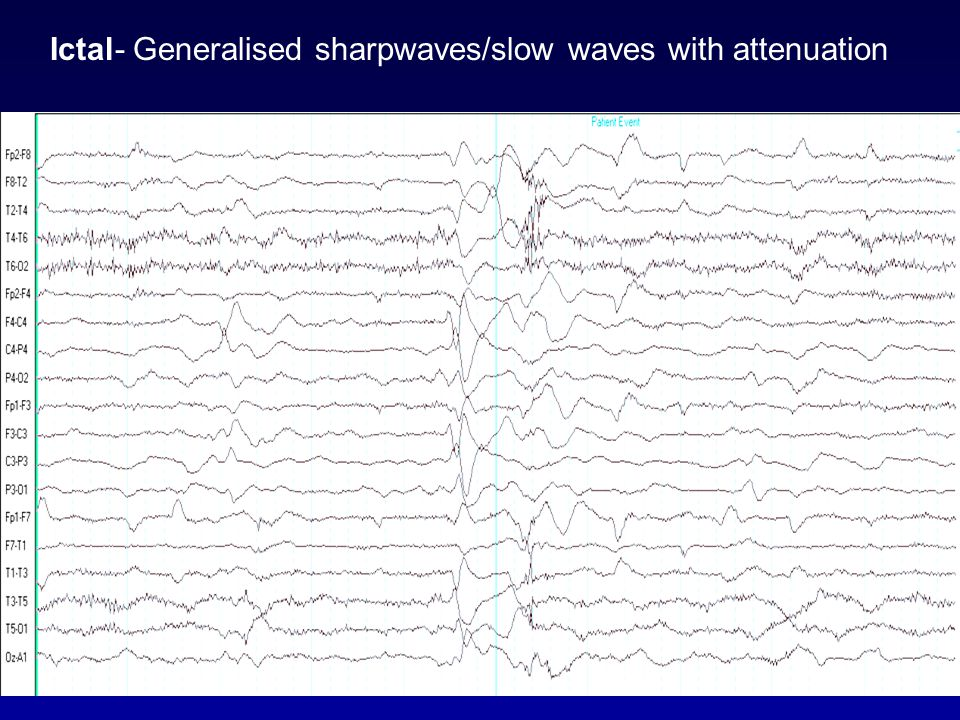 Ictal- Generalised sharpwaves/slow waves with attenuation