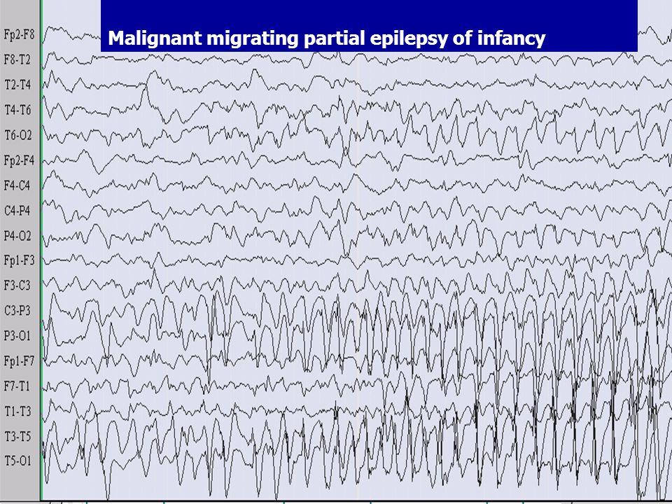 Migrating seizures of infantile