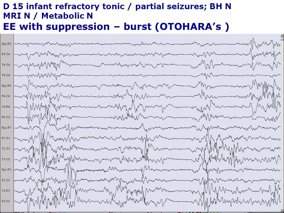 EE with suppression – burst (OTOHARA's )