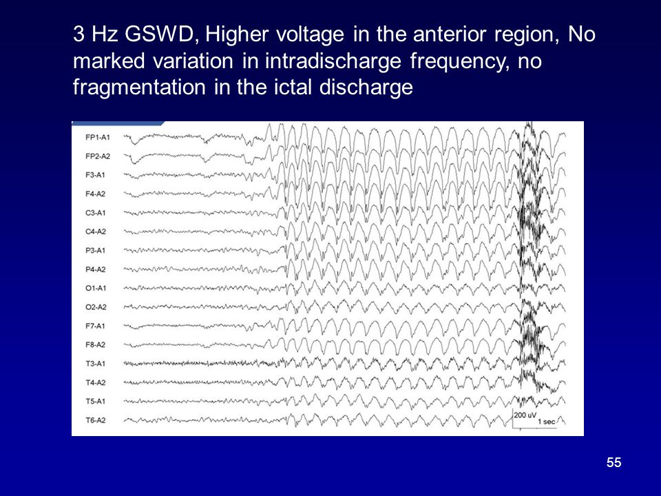 3 Hz GSWD, Higher voltage in the anterior region, No marked variation in intradischarge frequency, no fragmentation in the ictal discharge