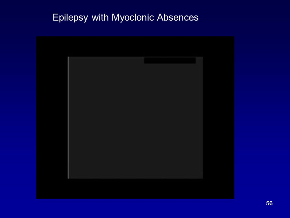 Epilepsy with Myoclonic Absences