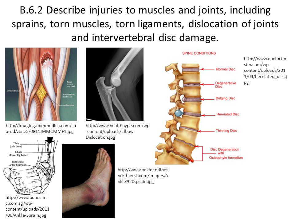 B.6.2 Describe injuries to muscles and joints, including sprains, torn muscles, torn ligaments, dislocation of joints and intervertebral disc damage.