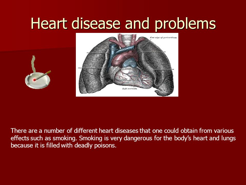 Heart disease and problems
