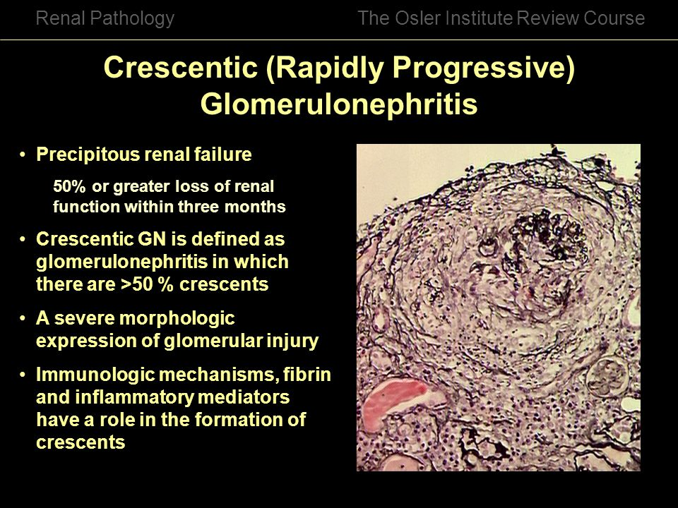 Crescentic (Rapidly Progressive) Glomerulonephritis