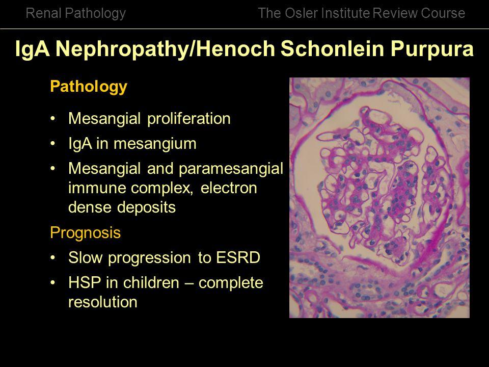 IgA Nephropathy/Henoch Schonlein Purpura