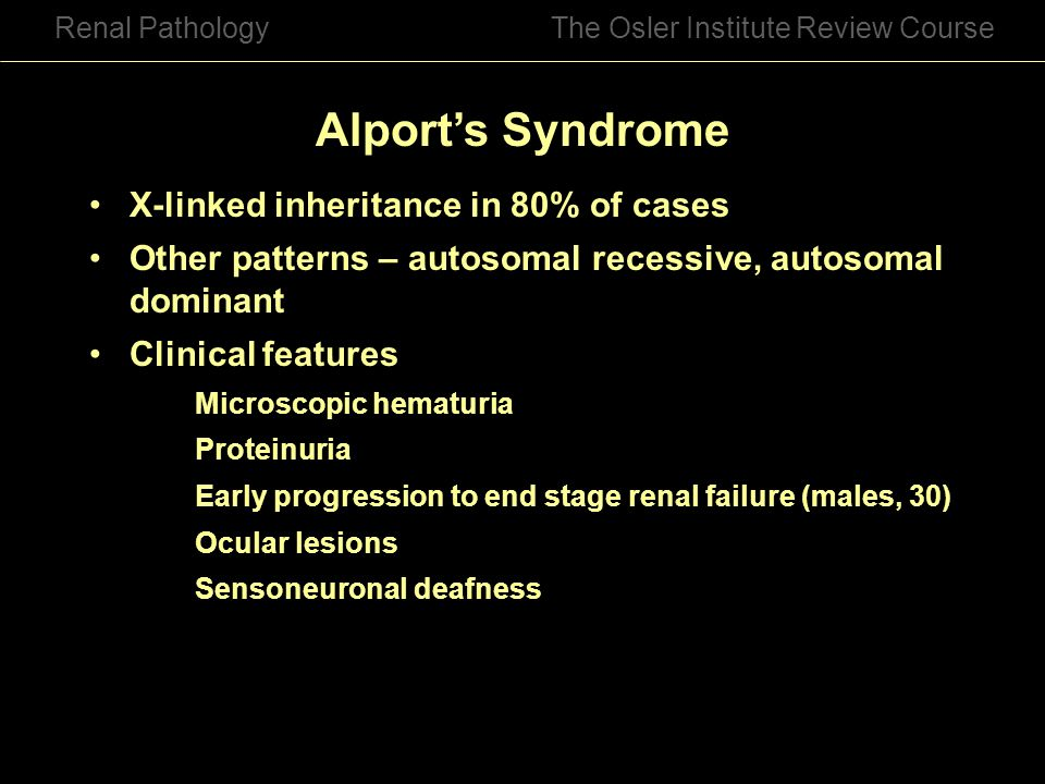 Alport's Syndrome X-linked inheritance in 80% of cases