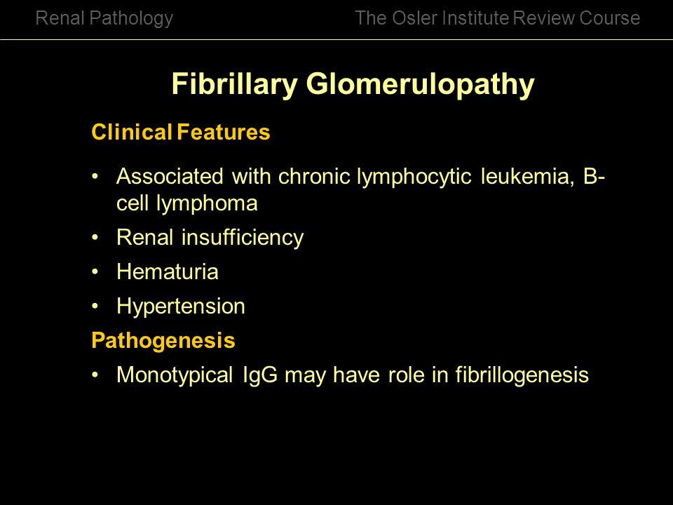 Fibrillary Glomerulopathy