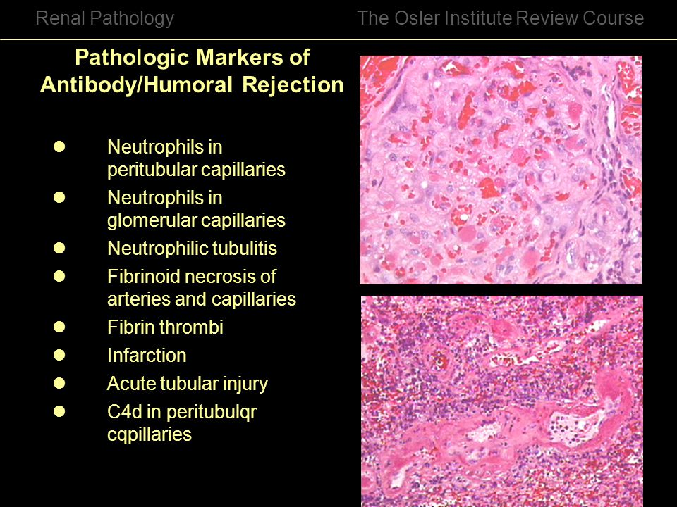 Pathologic Markers of Antibody/Humoral Rejection