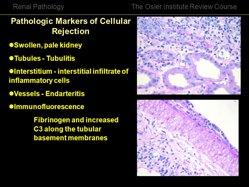 Pathologic Markers of Cellular Rejection