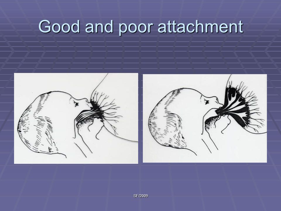 Good and poor attachment