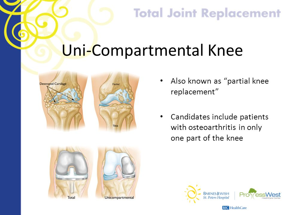 Uni-Compartmental Knee