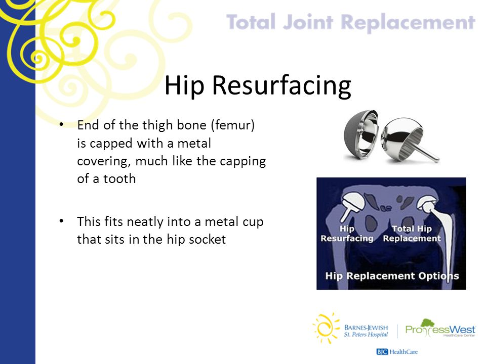 Hip Resurfacing End of the thigh bone (femur) is capped with a metal covering, much like the capping of a tooth.