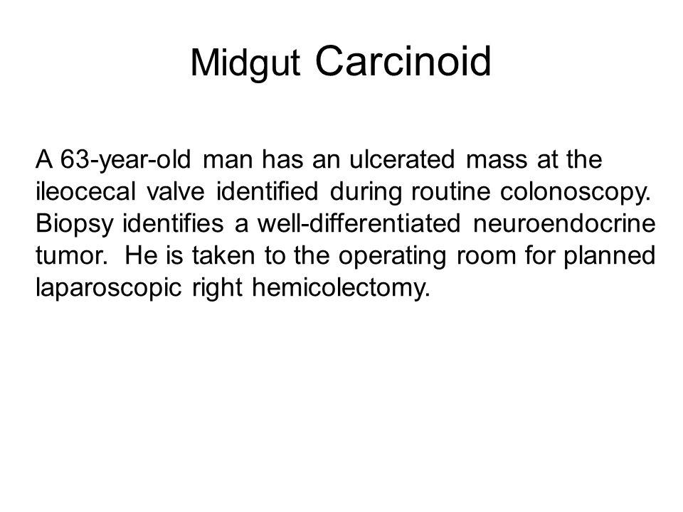 Midgut Carcinoid