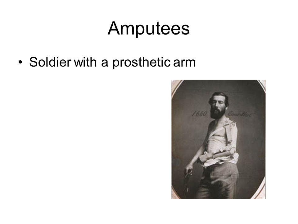 Amputees Soldier with a prosthetic arm