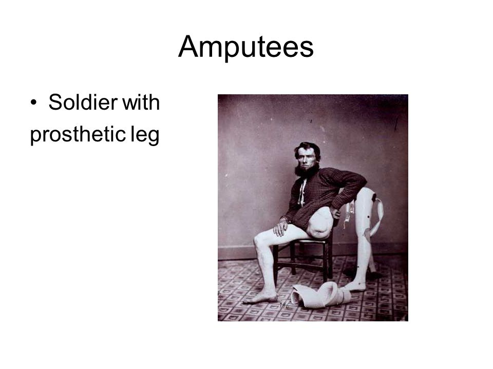 Amputees Soldier with prosthetic leg