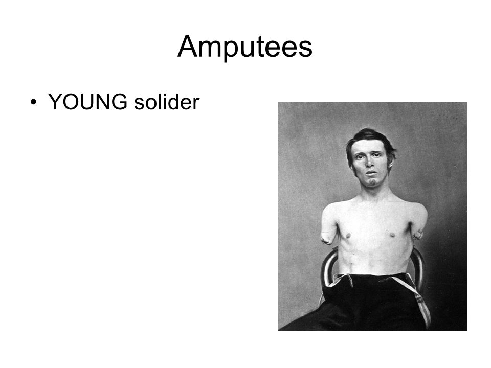 Amputees YOUNG solider