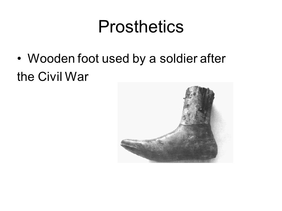 Prosthetics Wooden foot used by a soldier after the Civil War