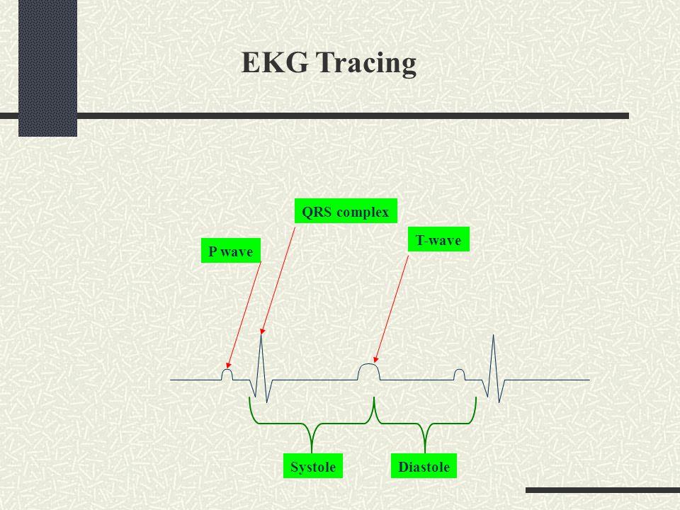 EKG Tracing QRS complex T-wave P wave Systole Diastole