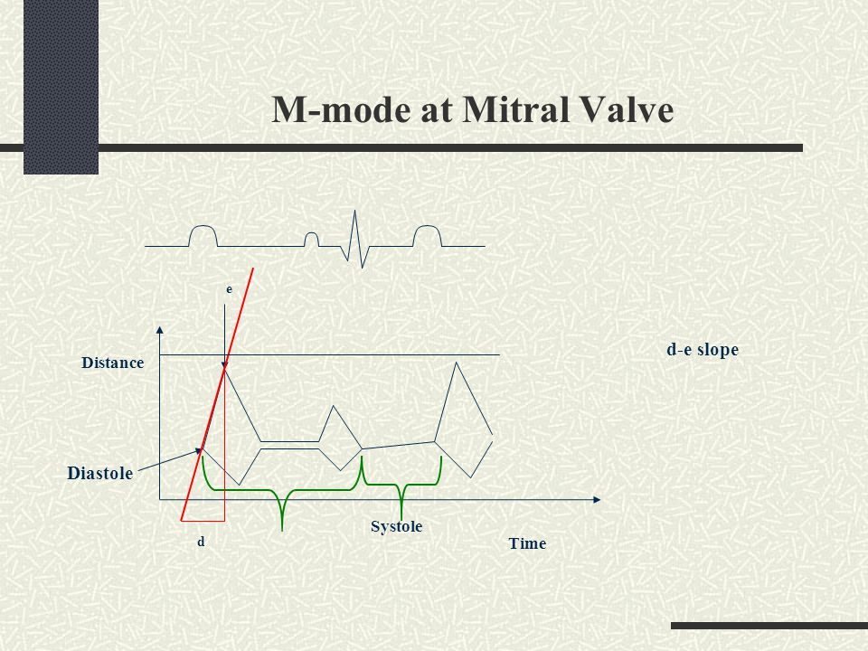 M-mode at Mitral Valve e d-e slope Distance Diastole Systole d Time