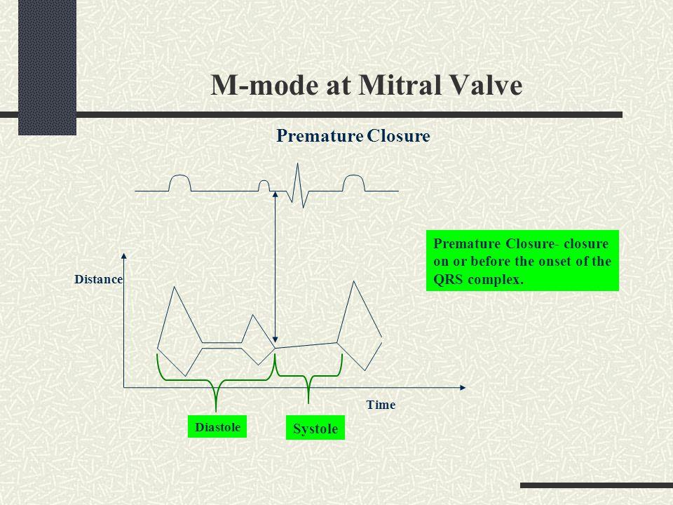 M-mode at Mitral Valve Premature Closure Premature Closure- closure