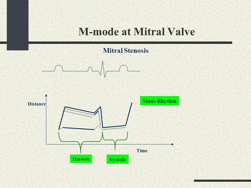 M-mode at Mitral Valve Mitral Stenosis Sinus Rhythm Systole Distance