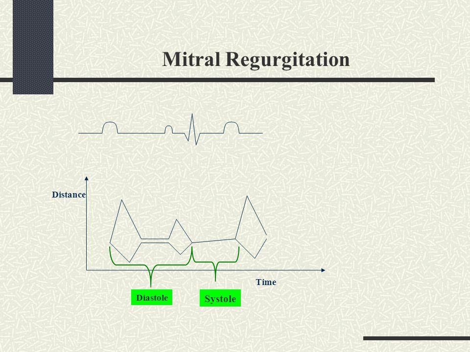Mitral Regurgitation Distance Time Diastole Systole