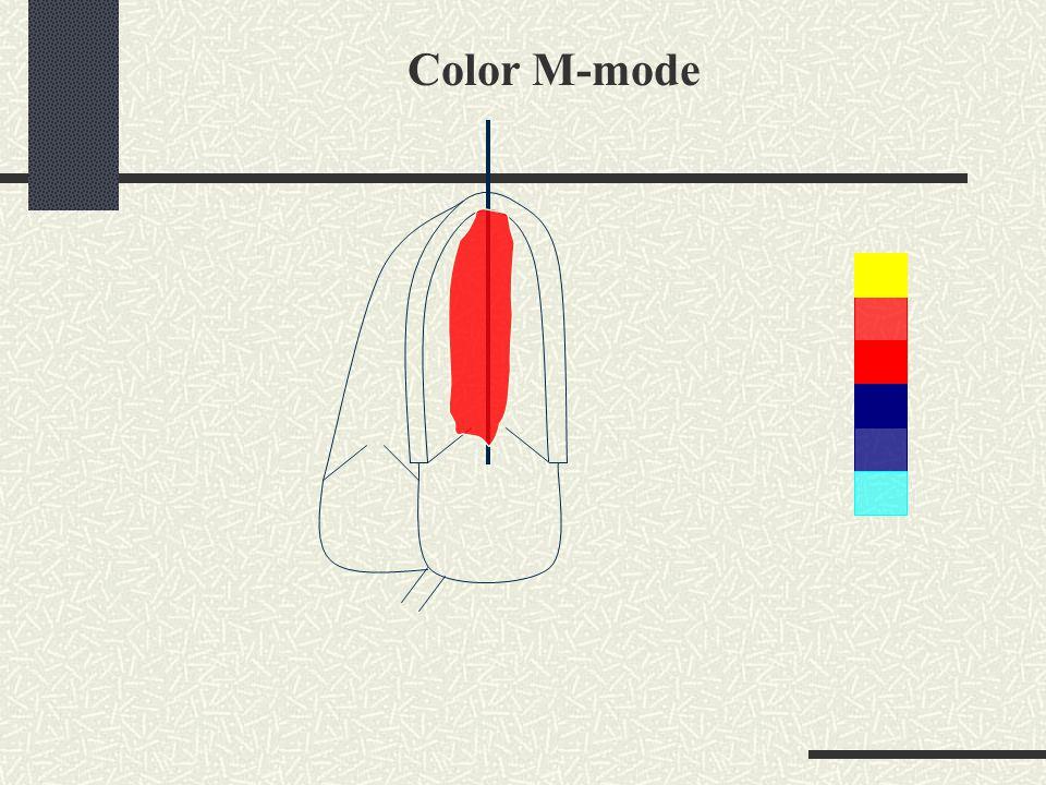 Color M-mode