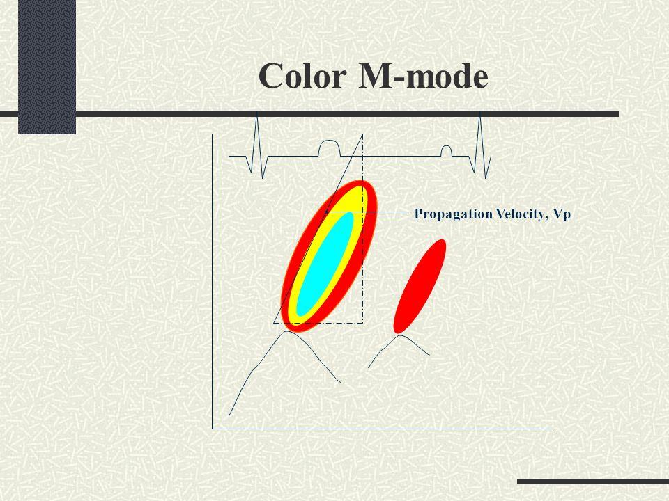 Color M-mode Propagation Velocity, Vp