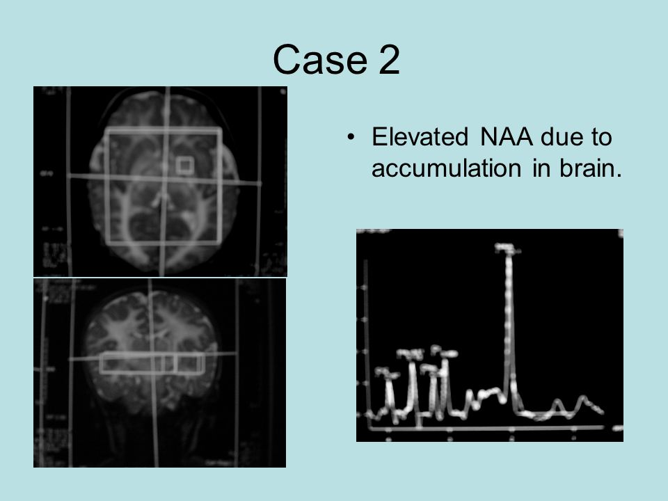 Case 2 Elevated NAA due to accumulation in brain.
