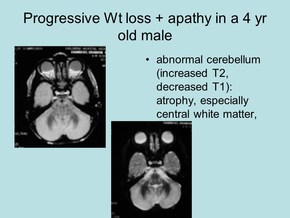 Progressive Wt loss + apathy in a 4 yr old male