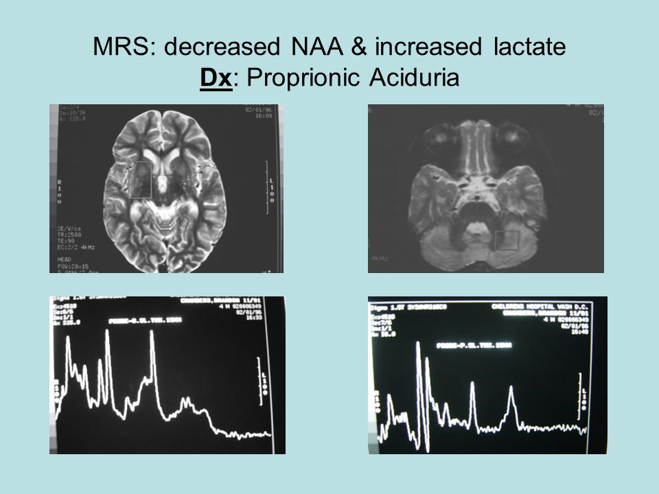 MRS: decreased NAA & increased lactate Dx: Proprionic Aciduria