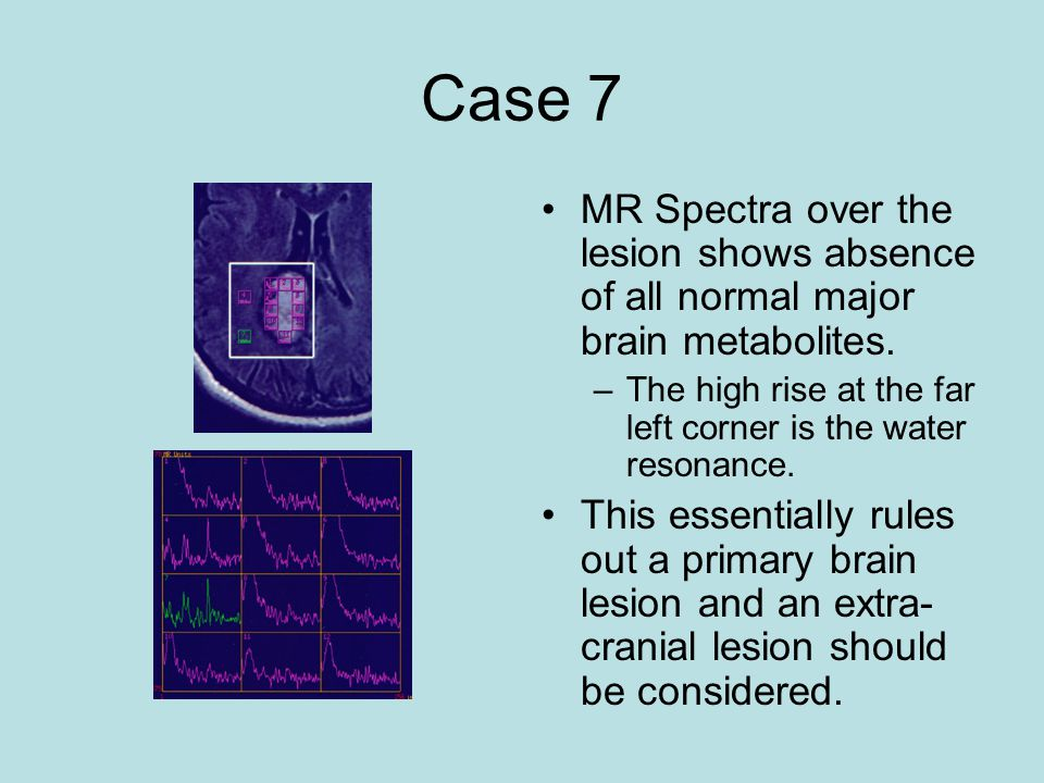 Case 7 MR Spectra over the lesion shows absence of all normal major brain metabolites. The high rise at the far left corner is the water resonance.