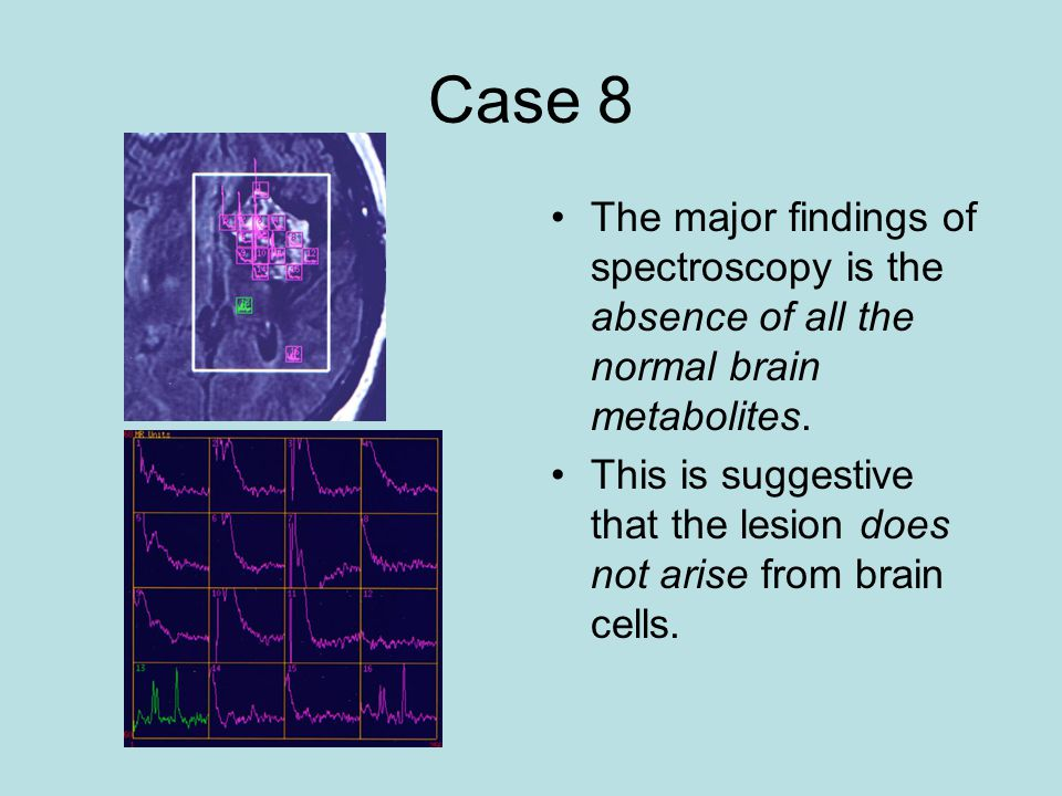 Case 8 The major findings of spectroscopy is the absence of all the normal brain metabolites.