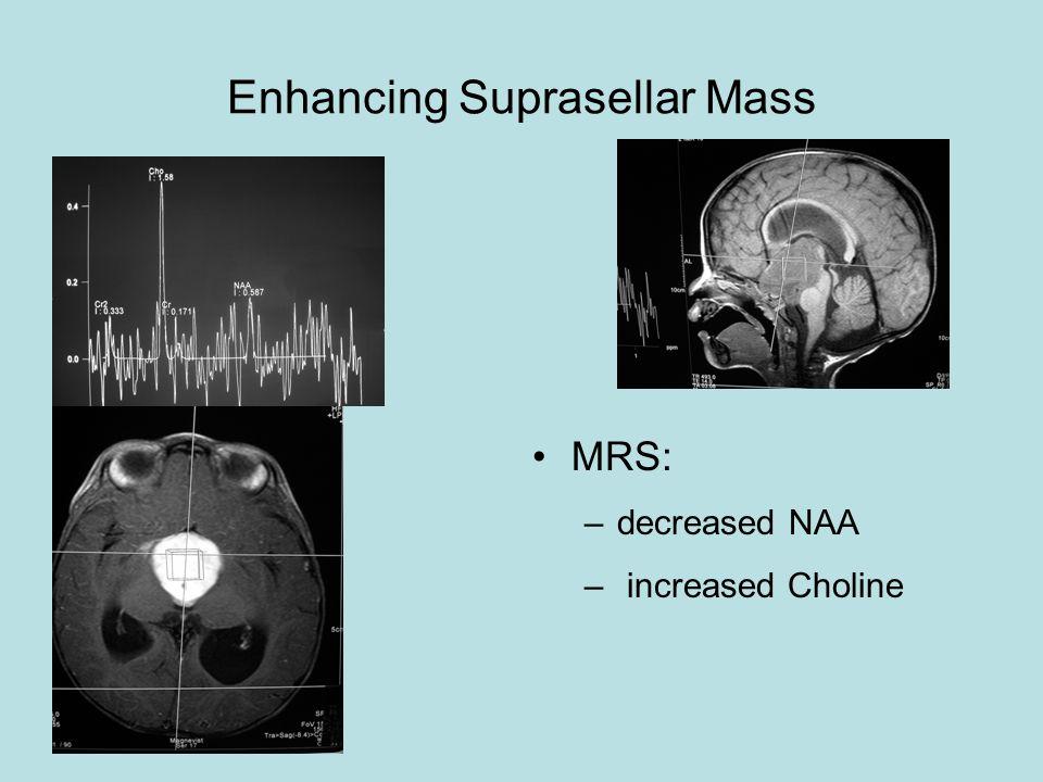 Enhancing Suprasellar Mass