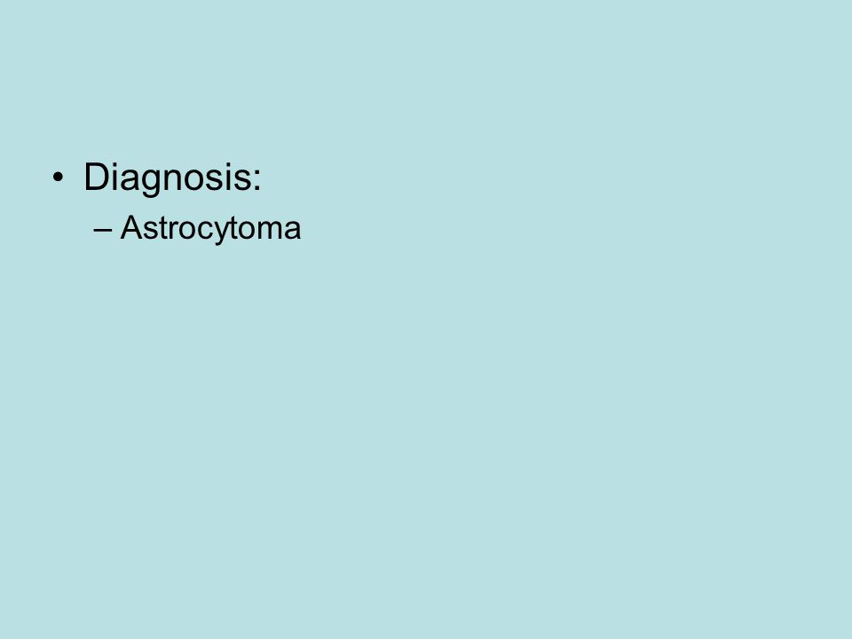 Diagnosis: Astrocytoma