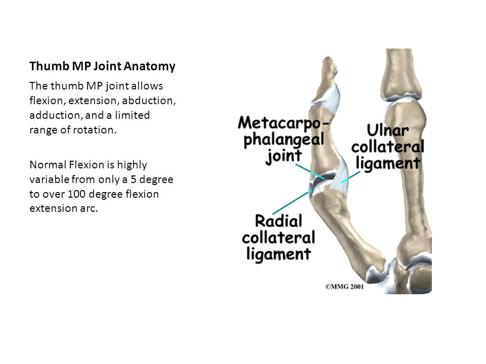 Innovative Splinting Options For The Thumb Mp Joint Ppt Video