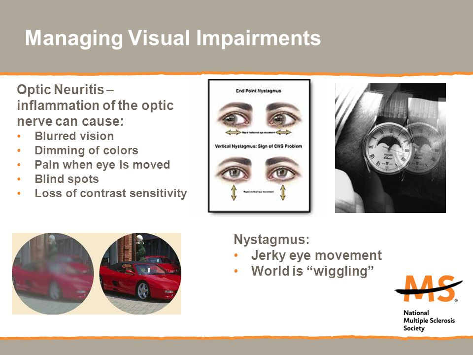 Managing Visual Impairments