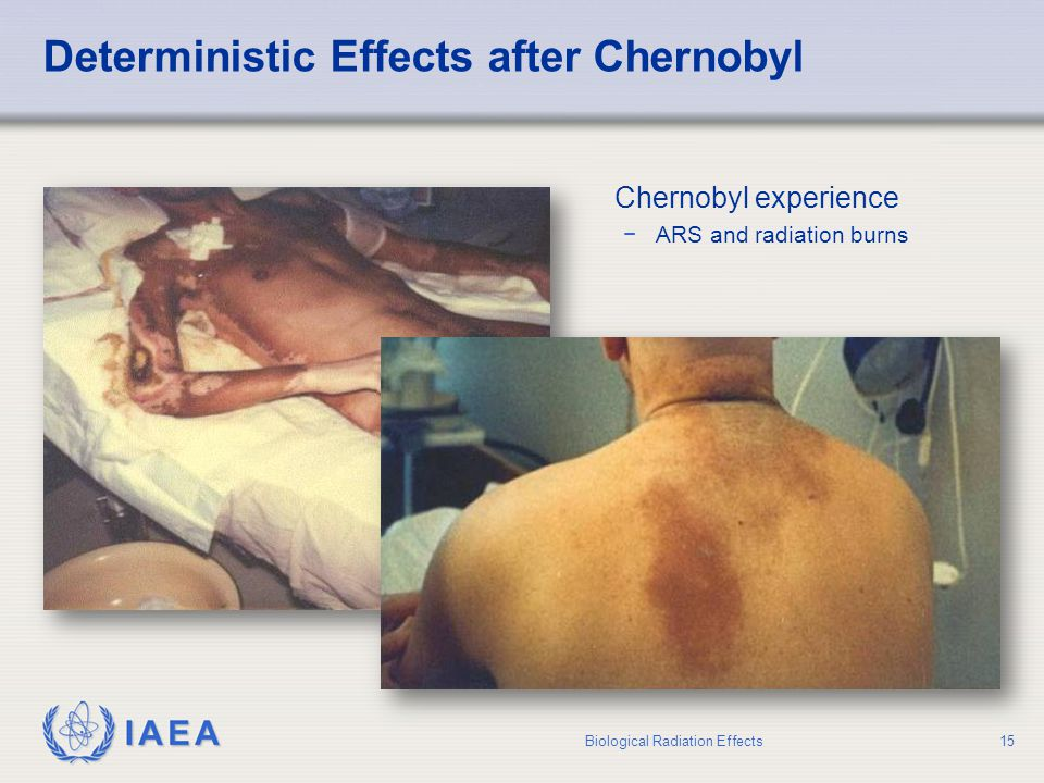 Deterministic Effects after Chernobyl