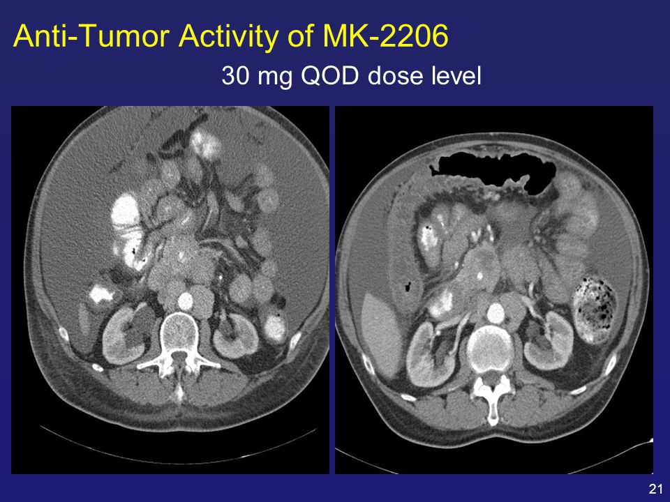 Anti-Tumor Activity of MK-2206
