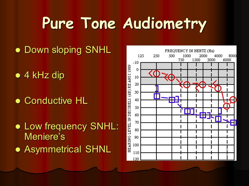 Pure Tone Audiometry Down sloping SNHL 4 kHz dip Conductive HL