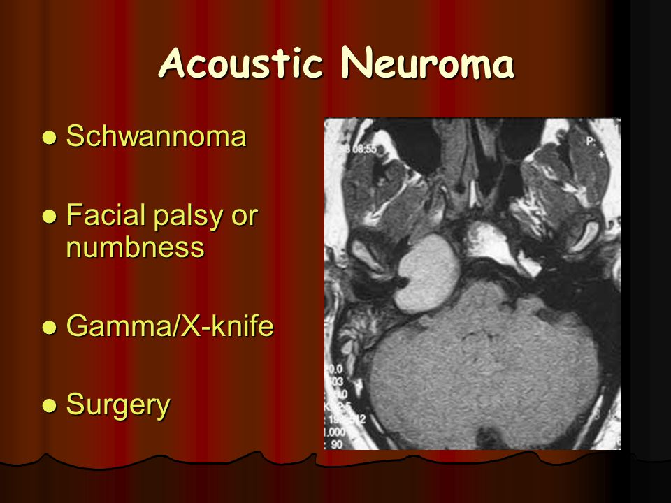 Acoustic Neuroma Schwannoma Facial palsy or numbness Gamma/X-knife