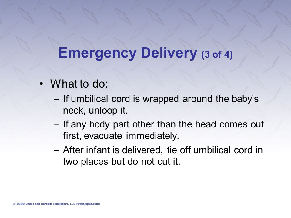 Emergency Delivery (3 of 4)