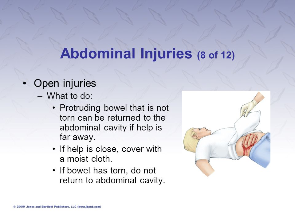 Abdominal Injuries (8 of 12)