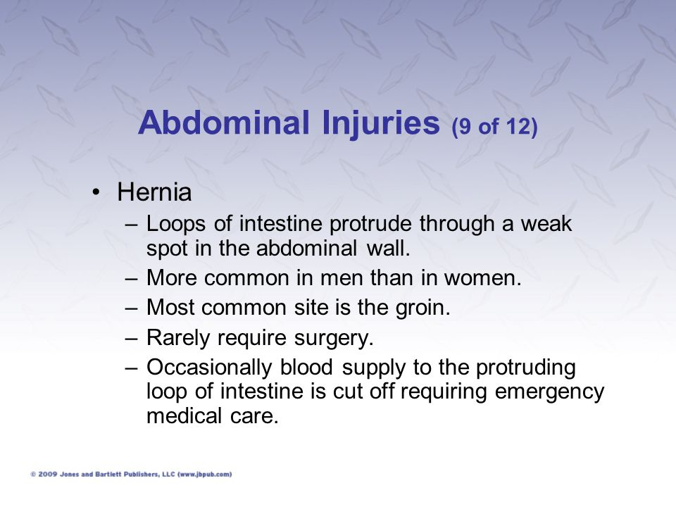 Abdominal Injuries (9 of 12)