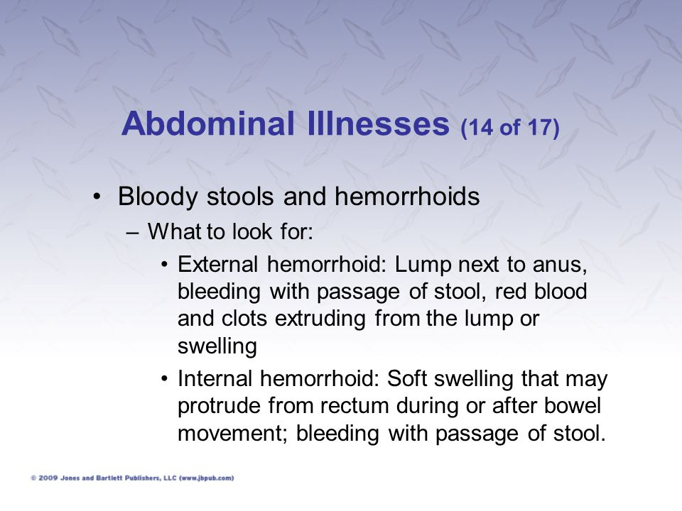 Abdominal Illnesses (14 of 17)