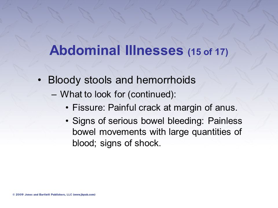 Abdominal Illnesses (15 of 17)