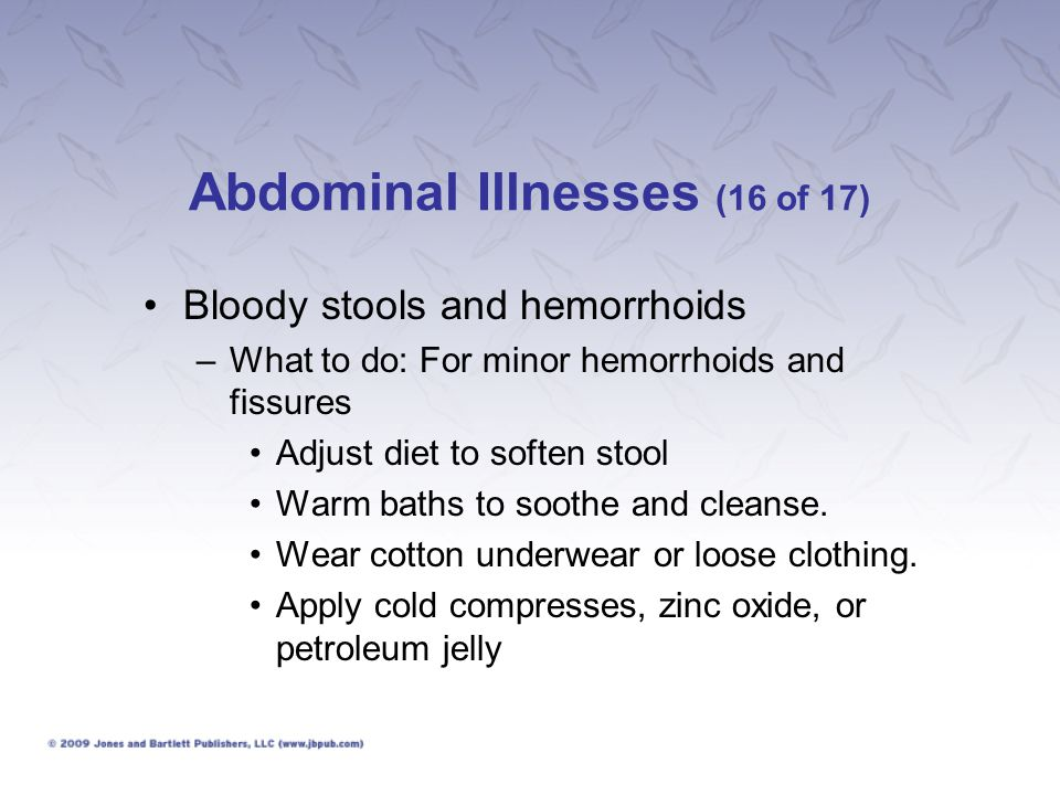Abdominal Illnesses (16 of 17)