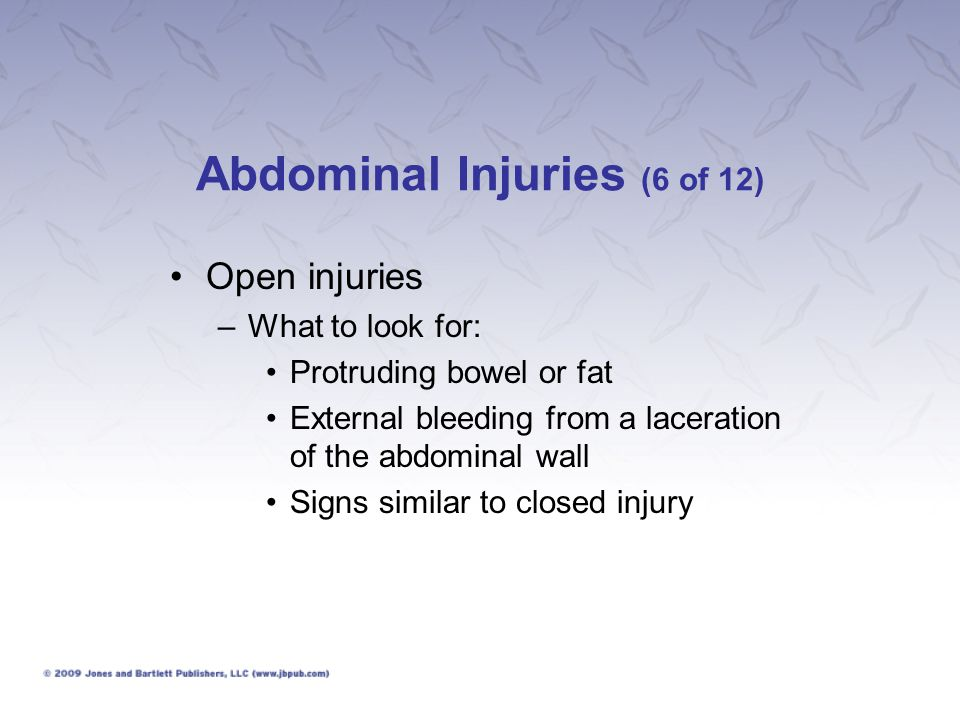 Abdominal Injuries (6 of 12)